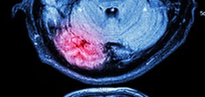A scan of a brain injury that our brain injury attorneys used in Montgomery County Court.